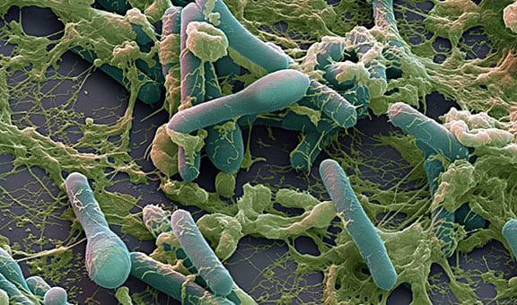 E. coli attacks immune system
